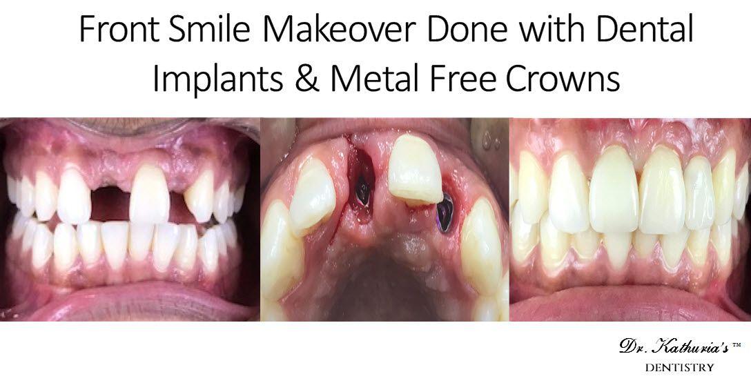 Dental Implants Low Cost Dental Implants in South Delhi