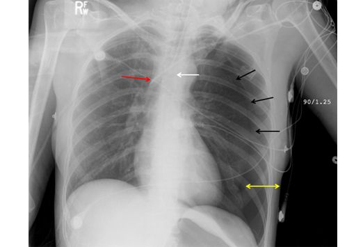 Medscape Log In X Ray Ray Line Radiography