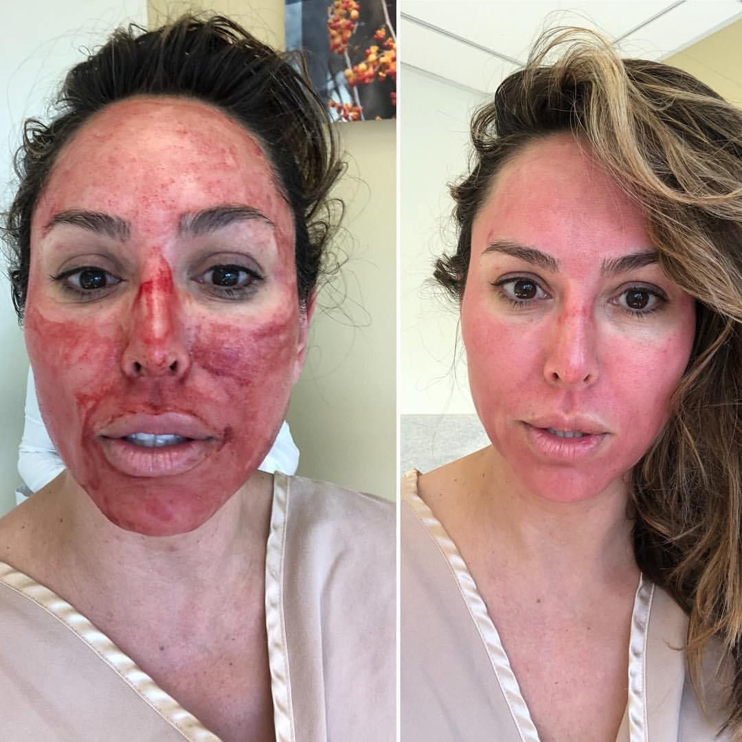 How Does Kelly Dodd Stay Looking Young Prp Microneedling Facials Aka Vampire Facials Check Out My Post For Facial Before And After Vampire Facial Kelly Dodd