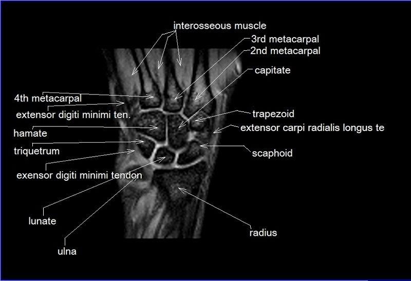 MRI wrist coronal anatomy | wrist tendon and ligaments anatomy ...