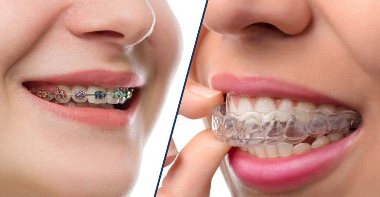 مميزات تقويم الأسنان وأهم طرق العناية به بعد تركيبه Invisalign Dental Braces Cosmetic Dentistry
