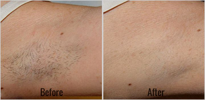 Laser Hair Removal Rancho Cucamonga Whittier Ca Laser Hair Removal Laser Hair Hair Removal
