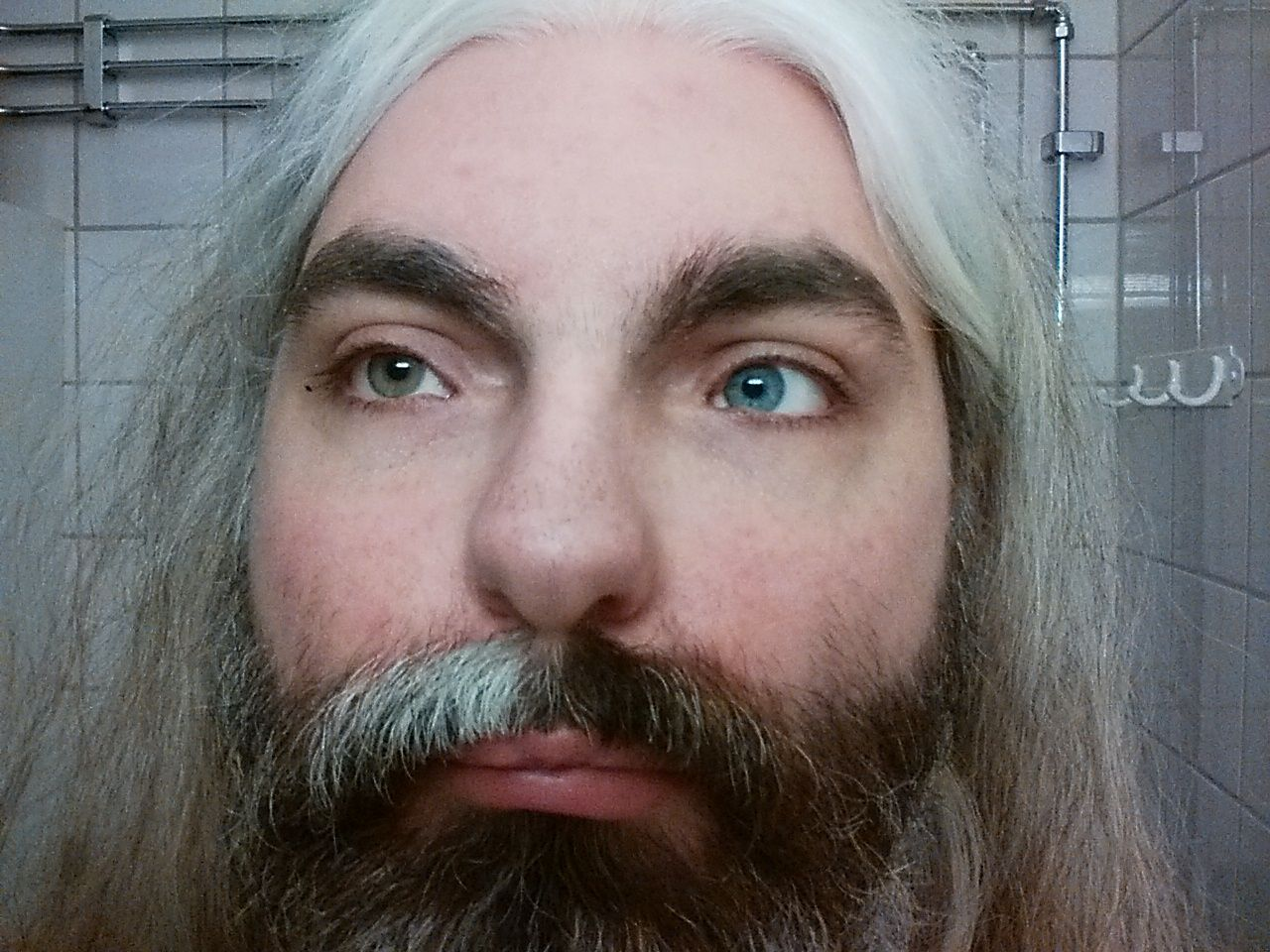 Image result for waardenburg syndrome white hair