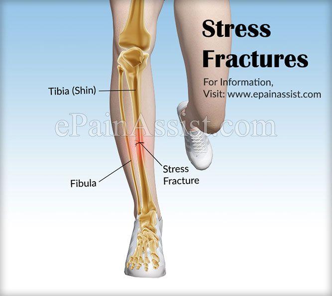 Stress Fractures Stress Fracture Stress Fracture Shin Stress