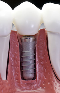 Implant Dentistry Baltimore Saúde Bucal Cirurgia Dentes