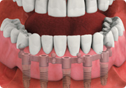 Implant Supported Dentures in Sun City, AZ   http://suncitydentalimplant.com/implant-supported-dentures/
