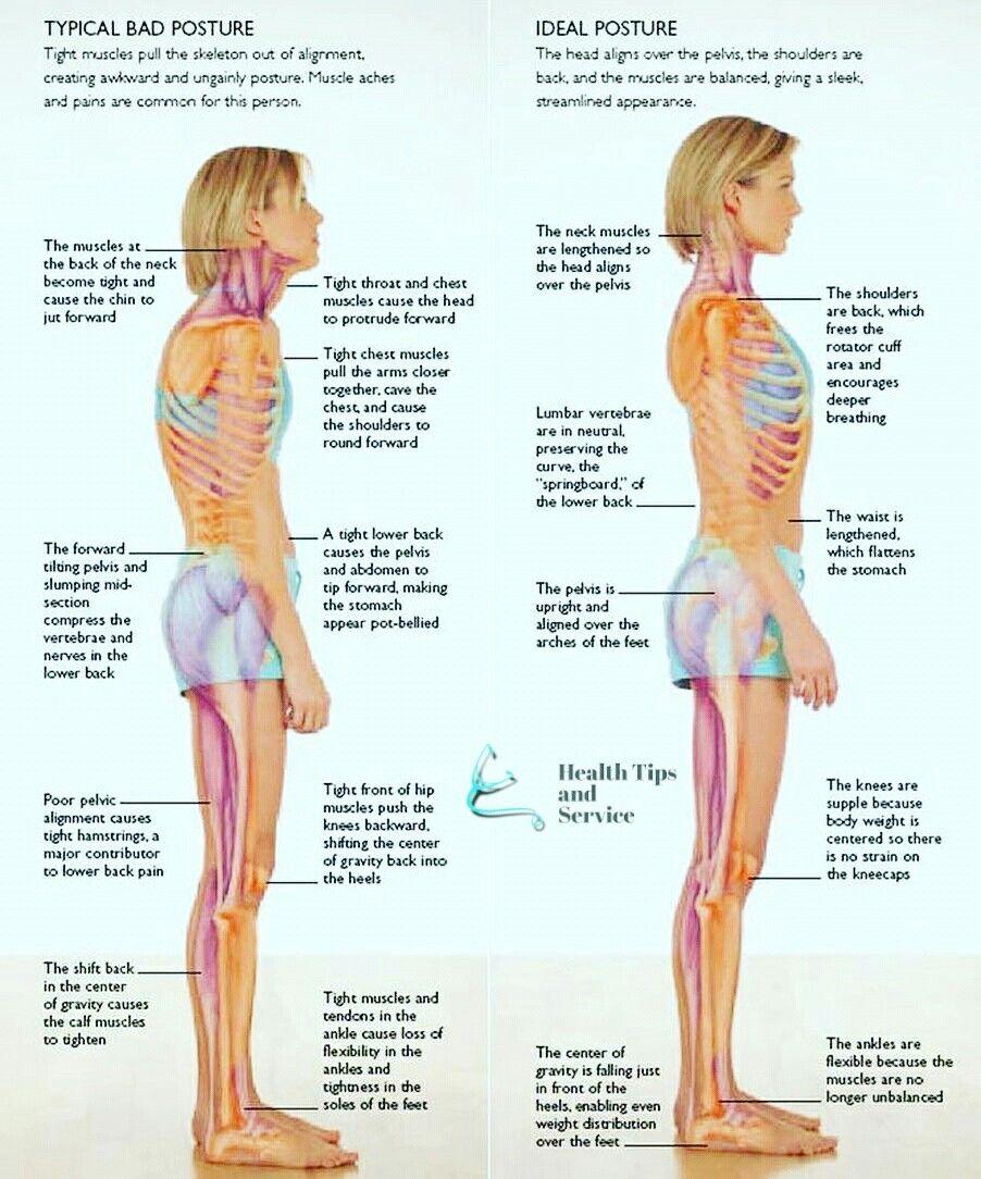 Typical Bad Posture Vs Ideal Posture! #poorposture #htns29 ...