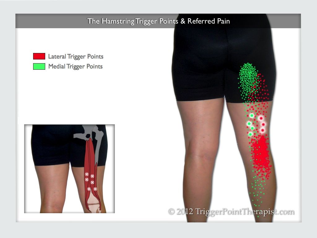 a diagram showing the hamstring trigger points and their referred pain [ 1024 x 768 Pixel ]