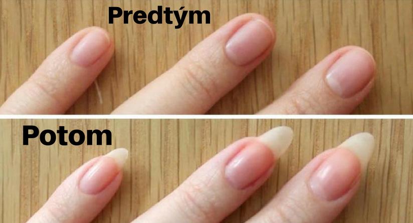 Vďaka trom ingredienciám budú vaše nechty silnejšie dlhšie a krajšie.  Výsledok je okamžitý | Grow nails faster, Make nails grow, How to grow nails