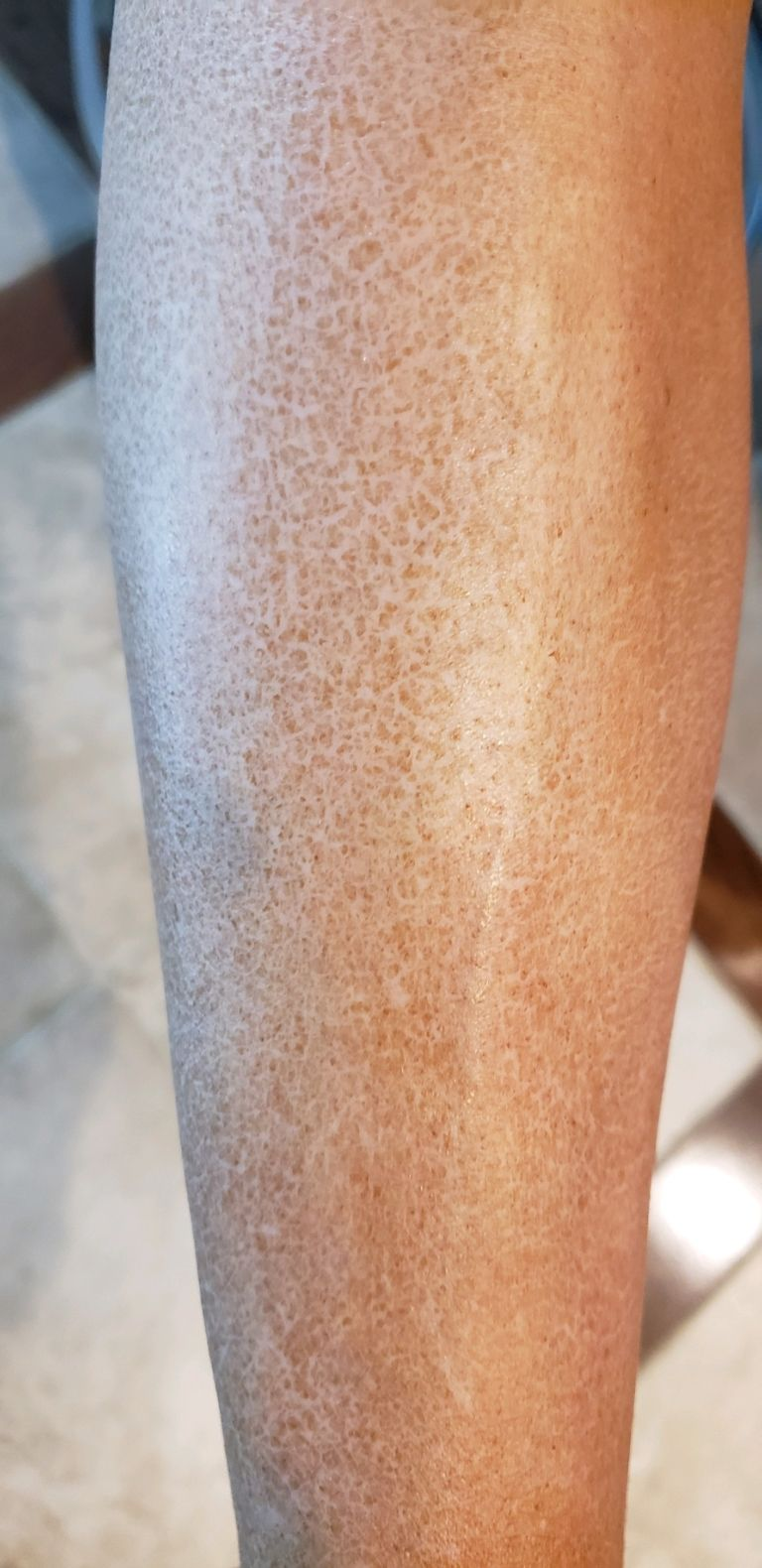 Why is my spray tan all Crackly looking? Tampa Bay Tan