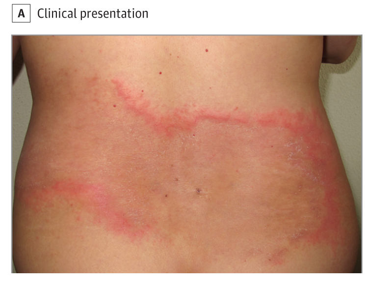 An Atypical Figurate Erythema With Seasonal Recurrences What Is Your Diagnosis Dermatology Atypical Seasons
