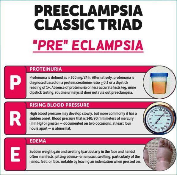 3ae5fb0b1 Image result for proteinuria symptom of preeclampsia