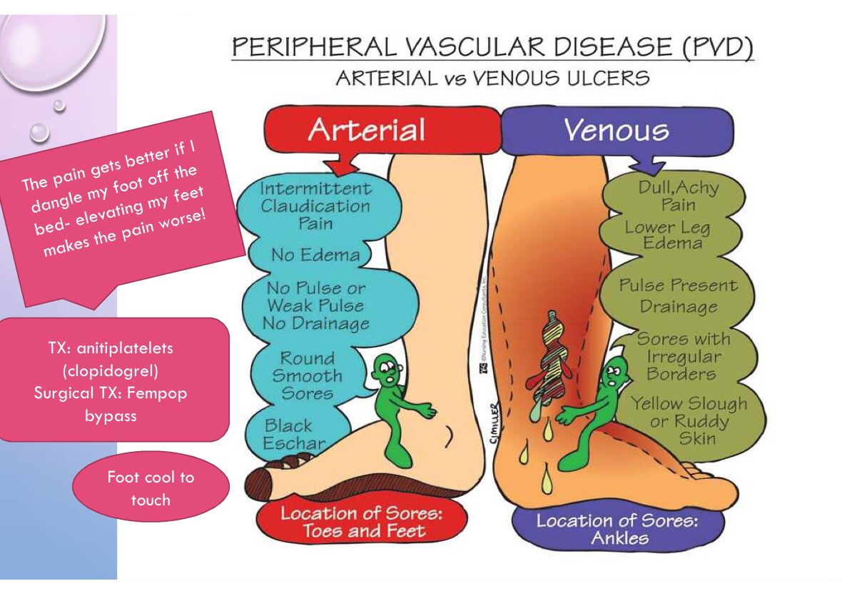 Pvd Arteriole Vs Venous Great Review For A Med Surg Exam Or The