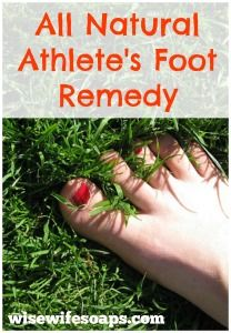 2 Natural Remedies to Treat Athlete's Foot for those itchy, sweaty feet--let's face it when you play tennis, it's bound to happen once in a while.