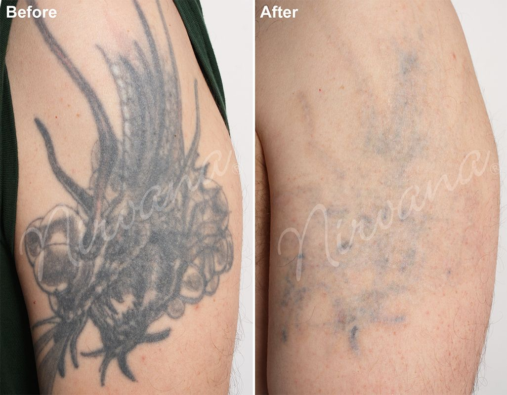 100 remove tattoo with salt video is salabrasion for How painful is tattoo removal