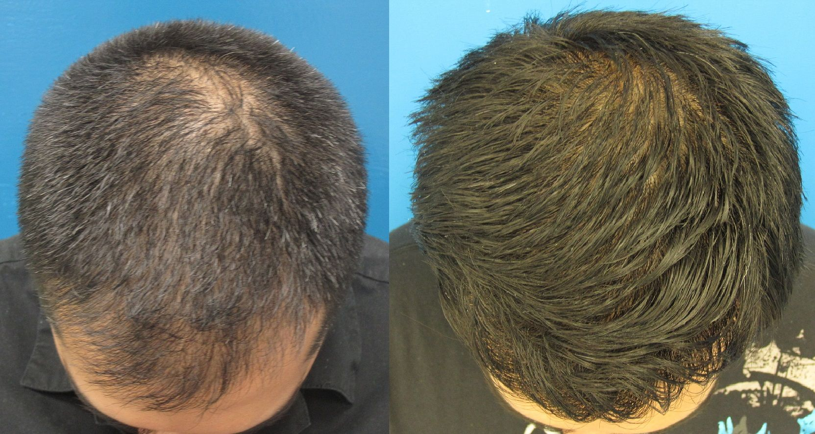 Fut Or Fue Hair Transplantation There Is A Couple Of Methods Available For Hair Transplantation Follicular Unit Extra Hair Laser Growth New Hair Hair Growth