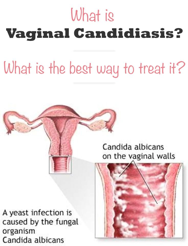 Natural Way To Cure Candidiasis