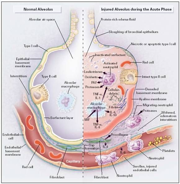 ARDS pathology | Pathophysiology of ARDS | Respiratory | Pinterest