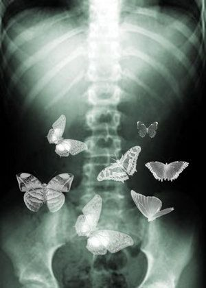 What Actually Is 'Butterflies In My Stomach' ?   Naked Science Forum