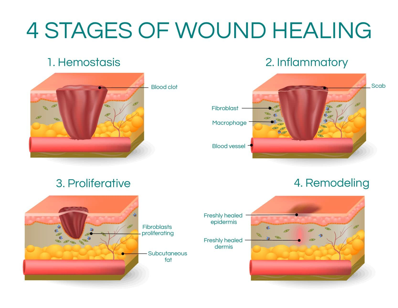 4 Stages of Wound Healing Wound healing, Color change