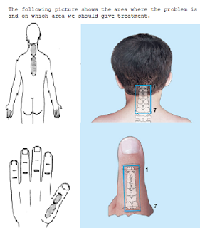 SOUTH ORISSA: HOW SU-JOK THERAPY HELPS IN CURING NECK PAIN ...