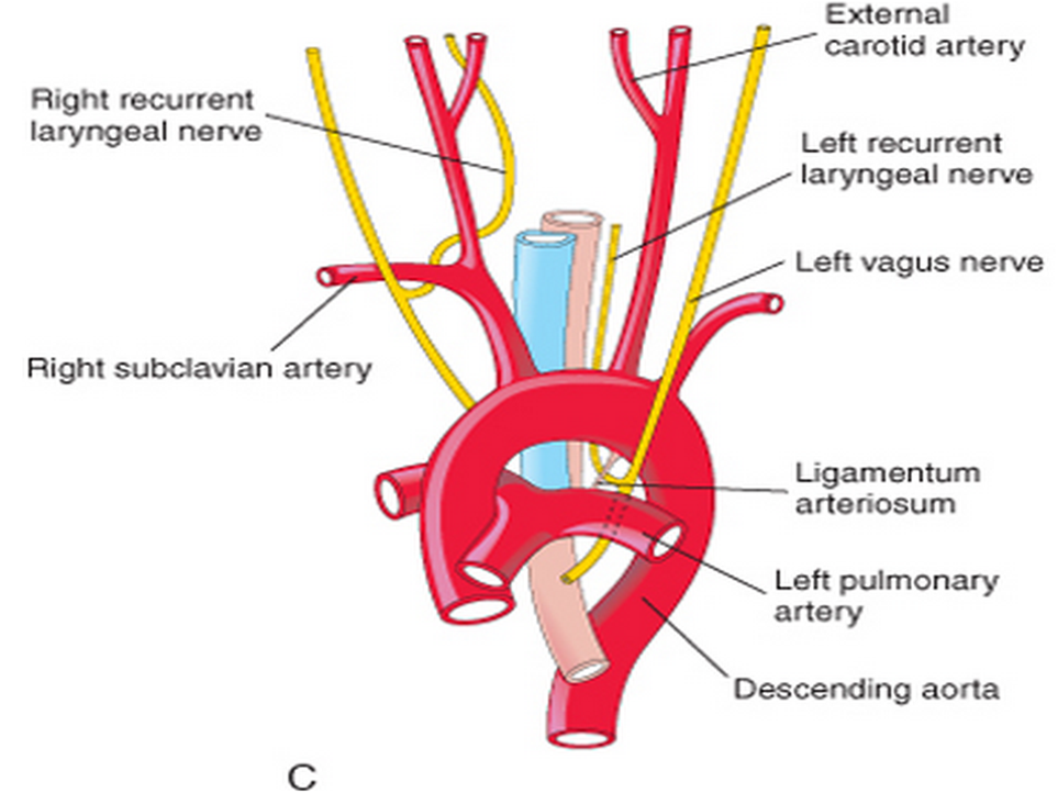 Recurrent laryngeal nerve - Google 검색 | slp anatomy etc ...
