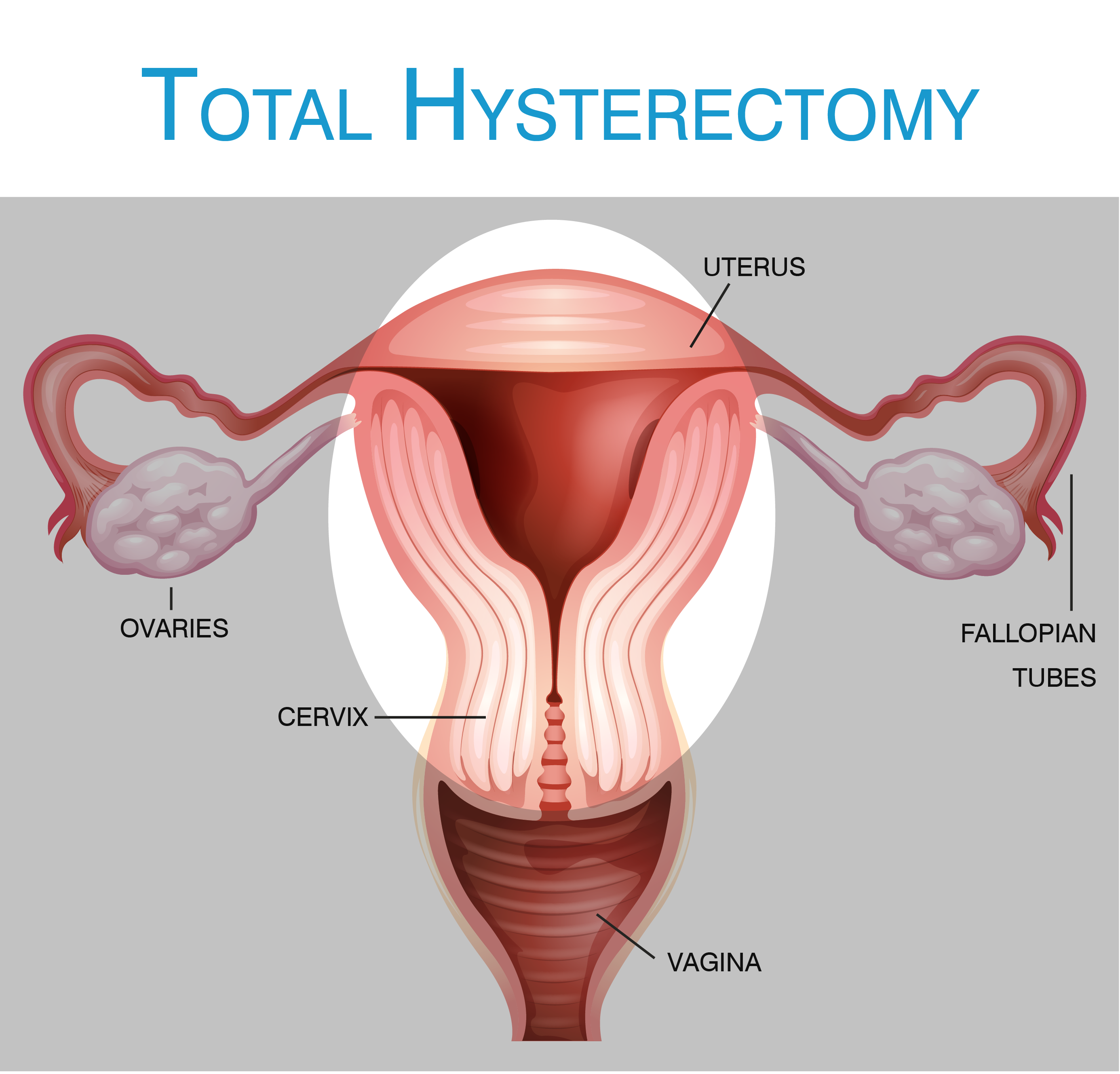 Hysterectomy What Is A Hysterectomy Hysterectomy Information