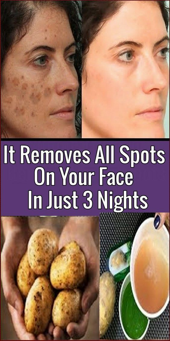 How To Removes All Spots On Your Face In Just 3 Nights