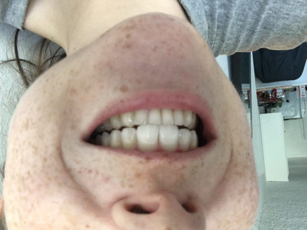 activated charcoal tooth polish review