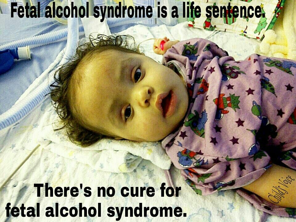 Alcohol can easily cross the placental barrier and reach the