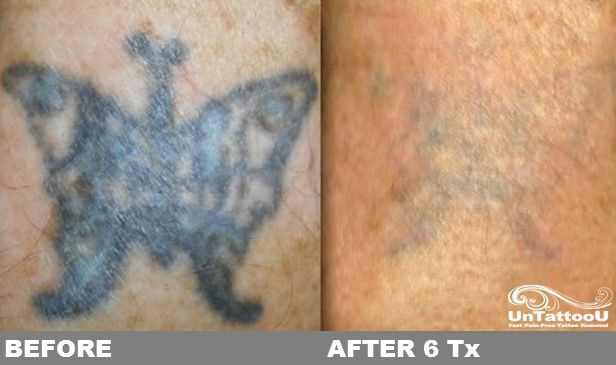 UnTattooU: Laser Tattoo Removal: Before & After 6 Treatments ...