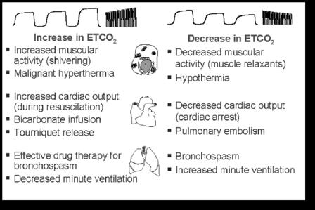 End Tidal CO2   TMC Exam (Therapist Multiple Choice Exam