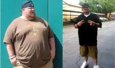 Weight Loss Success Stories Extreme Weight Loss Without Surgery