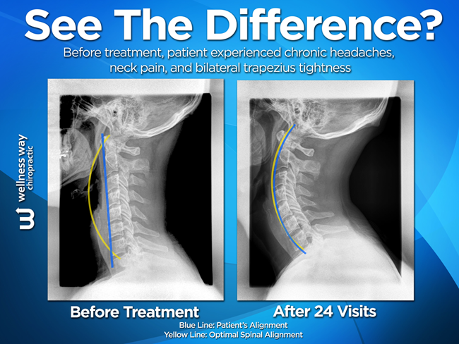 See The Result Before And After Chiropractic Treatments