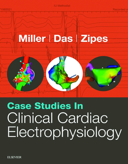 Case Studies In Clinical Cardiac Electrophysiology 1st Edition Pdf Free Download Case Study Medical Studies Cardiology