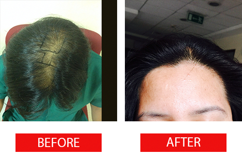Cutis International Is The Best Hair Transplant Clinic In Calicut And Gives City S Best Hair Restoration Best Hair Transplant Help Hair Loss Hair Loss Remedies