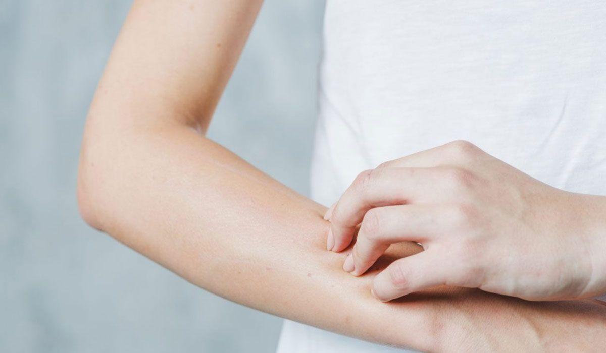 أضرار نقص فيتامين د على البشرة Dry Skin Dry Scaly Skin Dry Skin Causes