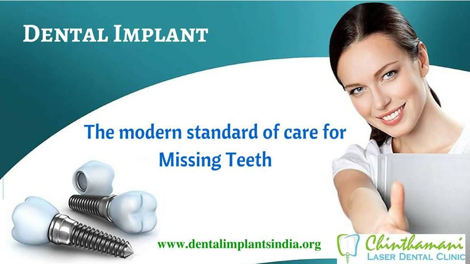 Dental implants are used to replace missing teeth. Chinthamani Laser Dental Clinic is one among the best which provide pain-free dental implant treatment in Chennai at an affordable price. They provide high-quality dental implant services and treatment in reasonable and realistic manner. For more details visit : http://dentalimplantsindia.org/