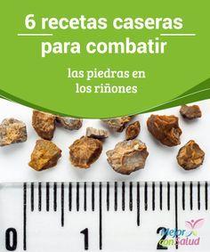 6 recetas caseras para combatir las piedras en los riñones  Los riñones son los órganos excretores que se encargan de eliminar las sustancias de desecho a través de la orina.