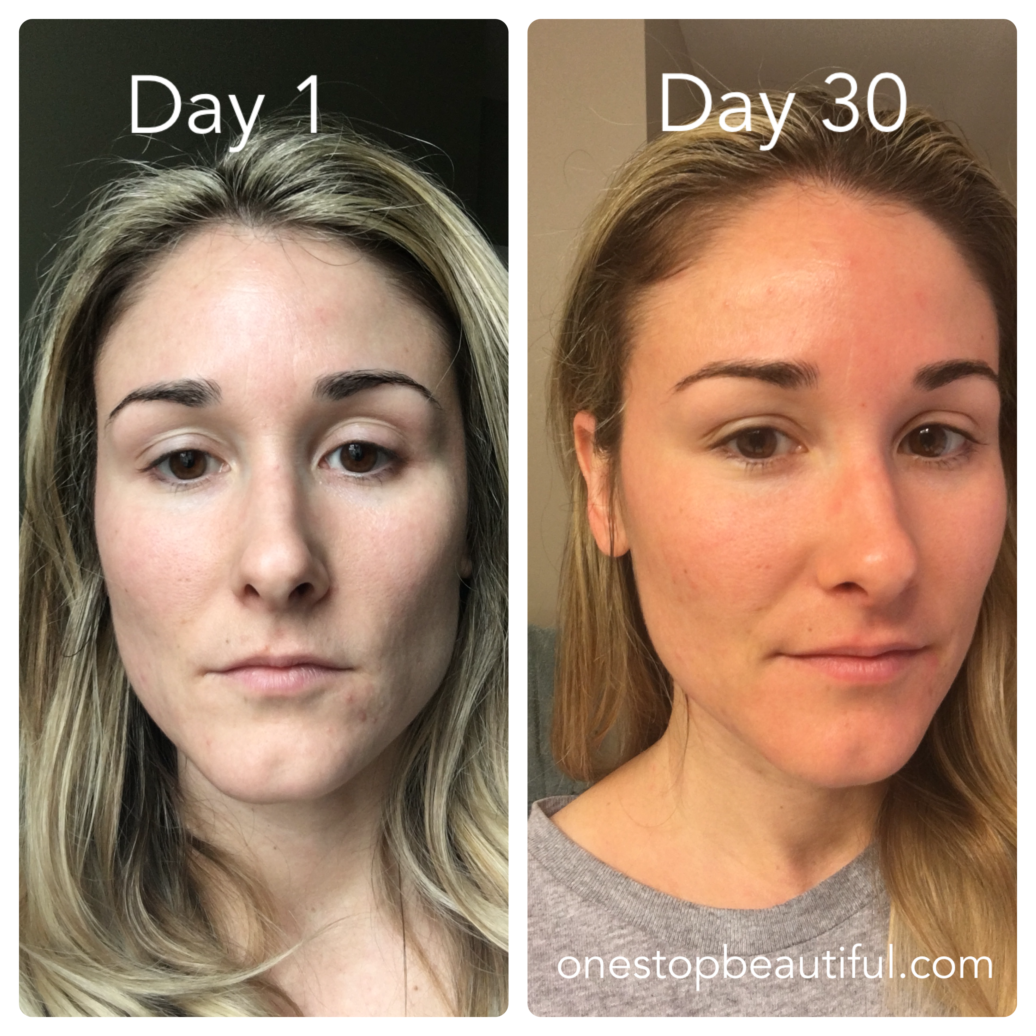 30 Day Results From My Skin Care Routine With Limelight By Alcone I Am Super Impressed This Has Helped My Acne S Skin Care Routine Skin Therapist Acne Scaring