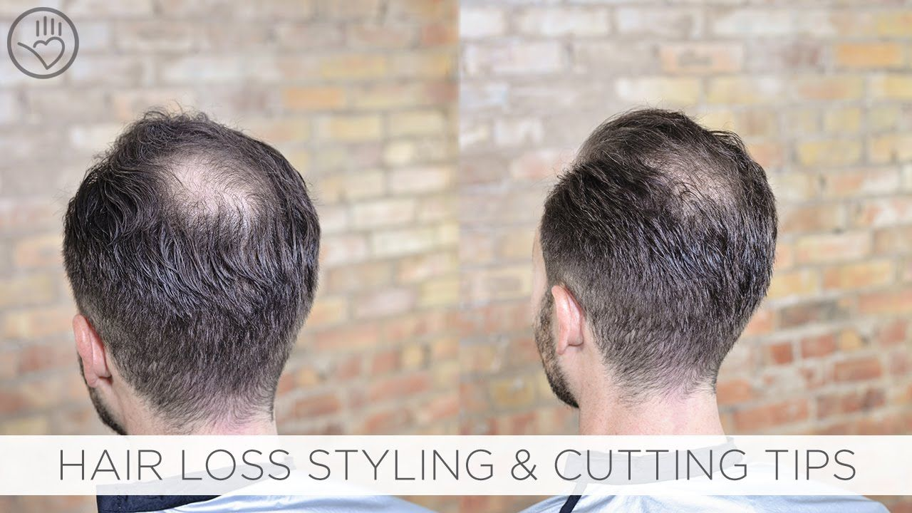 Hairstyles For Balding Crown New How To Cut & Style Balding Or Thinning Hair  Hair  Pinterest