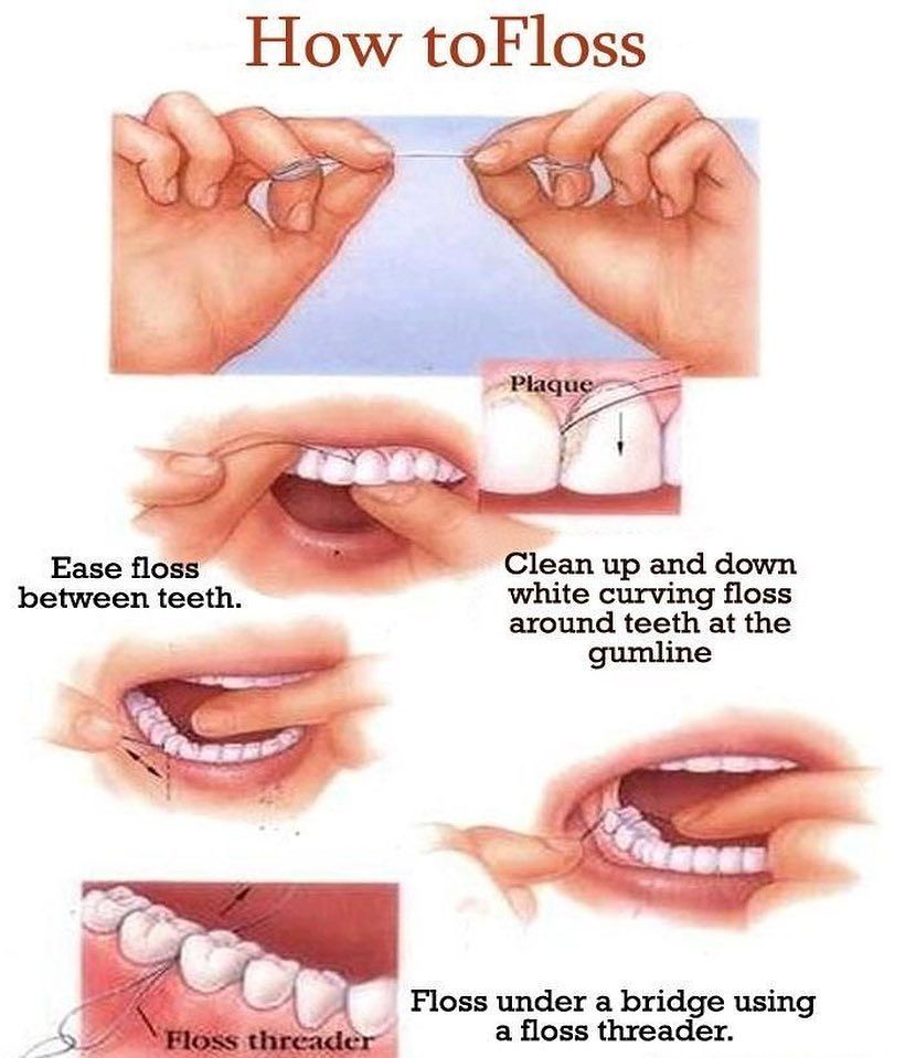 How to floss your teeth Dental flossing, What is