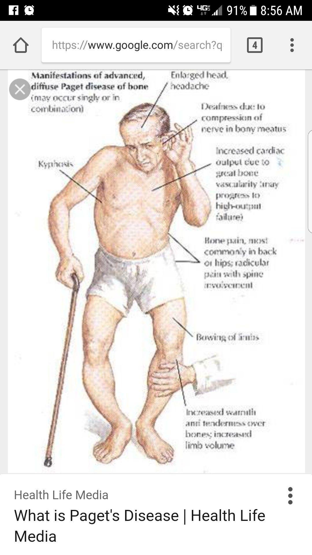 Pagets Disease Of The Bone  Pagets Disease, Nurse -1400