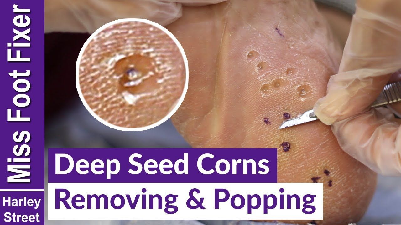 DEEP SEED CORNS REMOVING AND POPPING BY MISS FOOT