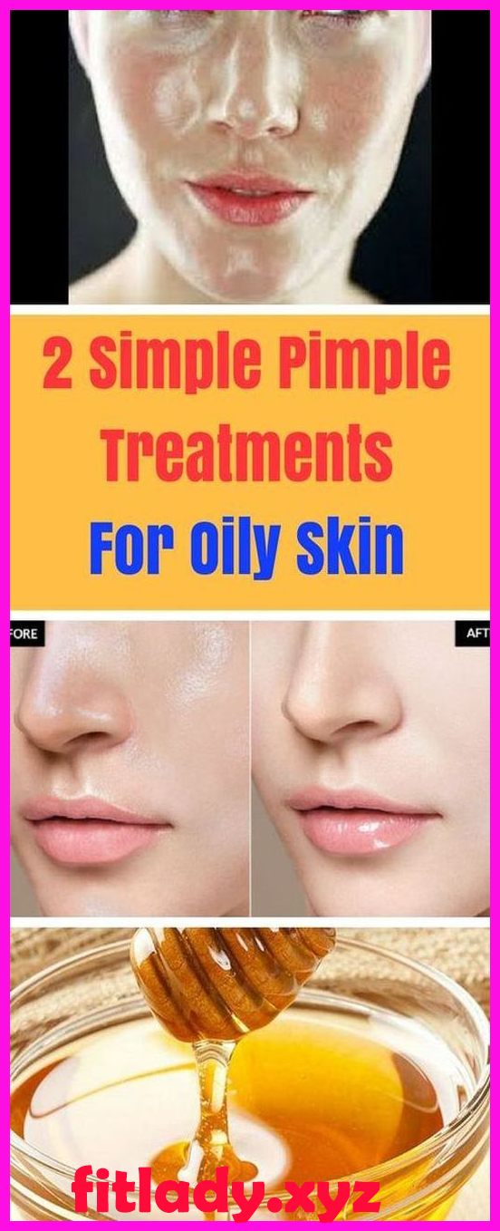 b45b0799500cde2372144b968472bccd - How To Get Rid Of Acne Blackheads And Oily Skin