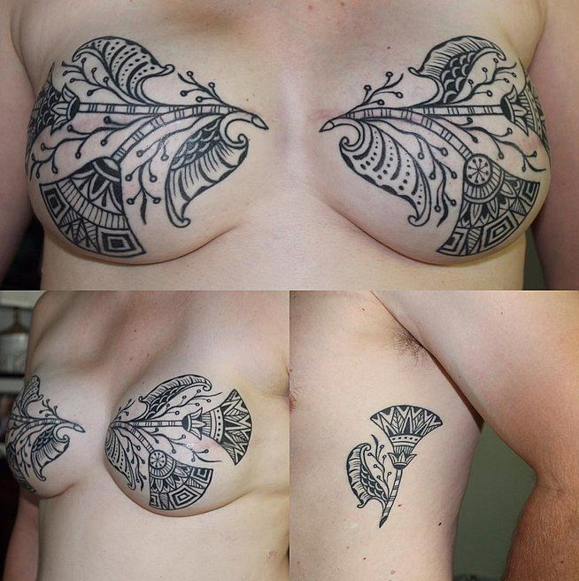 Tattoo Designs Breast: We All Have Scars In Different Places. This Beautiful
