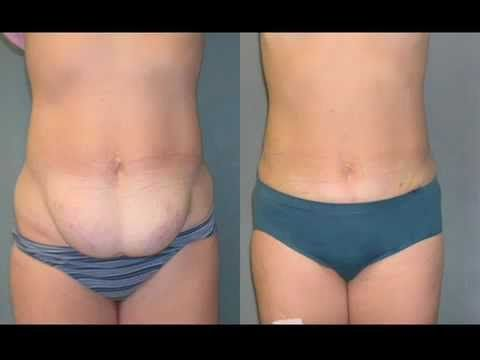 0c4881fed0 360 Body Lift Plastic Surgeon Dr. Katzen Beverly Hills