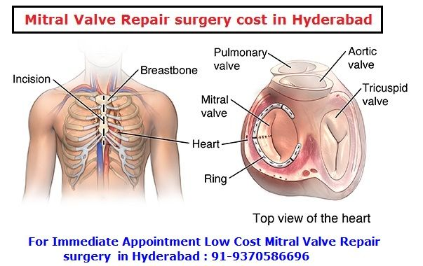b4645cf495052b53cc494ba82fb423b3 - How Much Does It Cost To Get Top Surgery In Canada
