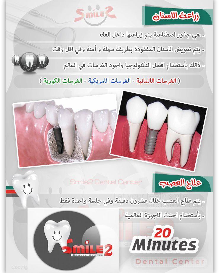 من خدماتنا زراعة الأسنان بأفضل التكنولوجيا وأجود الغرسات الأمريكية والألمانية والكورية علاج العصب خلال 20 دقيقة وفي جلسة و Implantology Oral Health Oral
