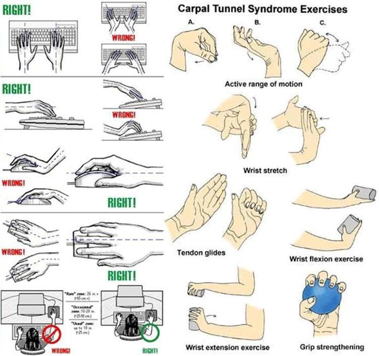 Carpal tunnel syndrome carpal tunnel syndrome carpal